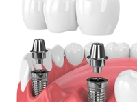 Two implant bridge