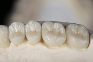 dental crowns on a model of a mouth