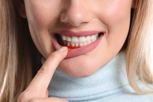 woman red gums from gingivitis